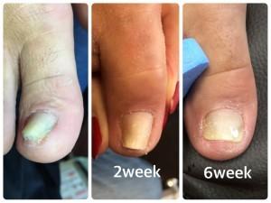 重度の巻き爪補正 右足の様子 スタート時~6週間後