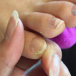 角質が溜まり爪が変形 施術後