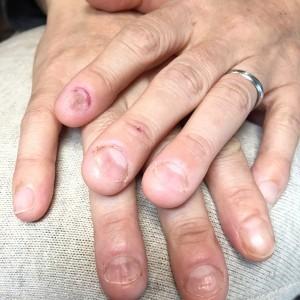 むしり癖による爪の形のお悩み(自爪状態:重度)自爪育成施術前