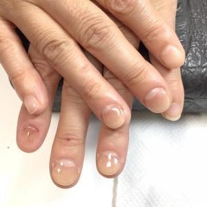 むしり癖による爪の形のお悩み(自爪状態:重度)自爪育成施術後