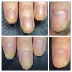 手足口病の後遺症による爪の剥離補修 上:施術前 下:施術後