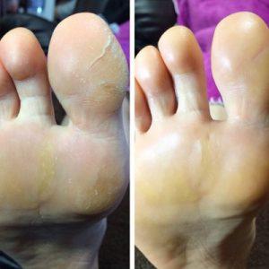 ガチガチになった足裏の角質 2回目:左(施術前)⇒右(施術後)